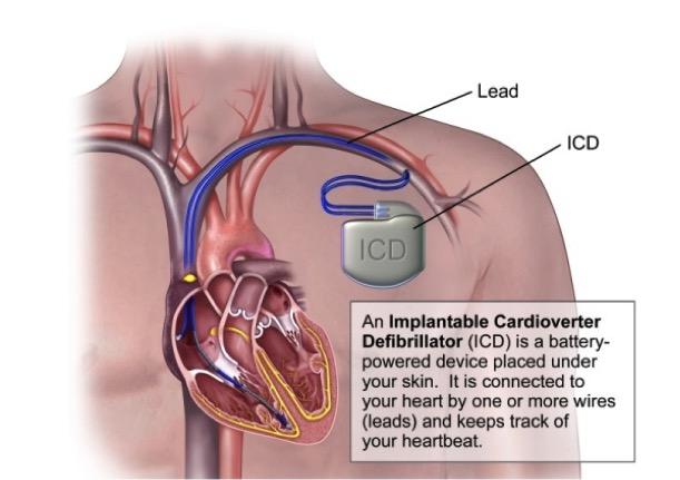 Cardioverter