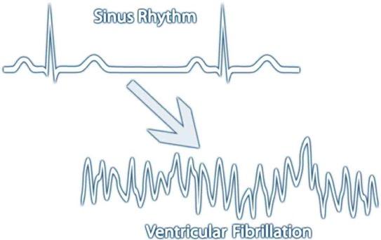 Fibrillation graph